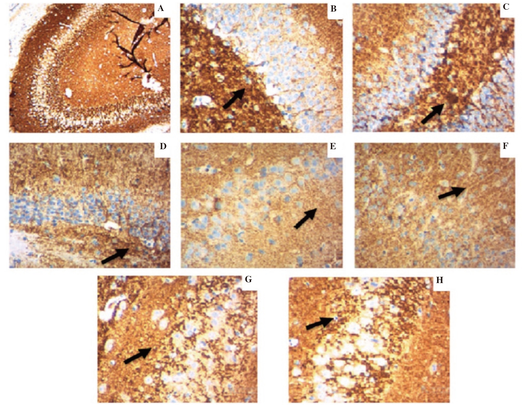 Figure 4: Synaptic plasticity was assessed by synaptophysin expression in the hippocampus of rats by immunohistochemistry. A: Sections show normal synaptophysin expression. B, E, F: Sections show reduced expression of synaptophysin which is represented by weak brown stain (shown by arrows) intensity (borderline to weak) in cells. C, D, G, H: Sections show strong staining (shown by arrows) intensity (moderate to strong) in cells. (Magnification 10×). A: normal control; B: normal control treated with lead acetate; C: normal control animals treated with lead acetate and atomoxetine; D: normal control animals treated with lead acetate and <i>Celastrus paniculatus</i> oil; E: social isolated; F: socially isolated animals treated with lead acetate; G: socially isolated animals treated with lead acetate and atomoxetine; H: socially isolated animals treated with lead acetate and <i>Celastrus paniculatus</i> oil.